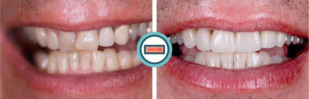 FRONTZAHNKRONEN MIT STELLUNGSKORREKTUR - Zahnarzt Dr. Muggenthaler München