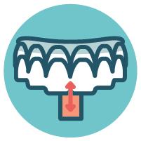Invisalign sind die unsichtbare Zahnspangen aus München