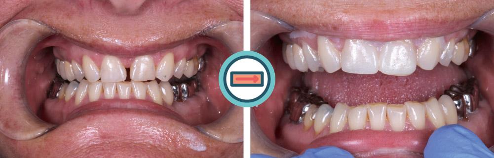 Lückenschluss der oberen ersten Frontzähne