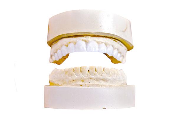 CMD Folgetherapie durch Anpassung der Kieferstellung Zahnarzt Asamhof München