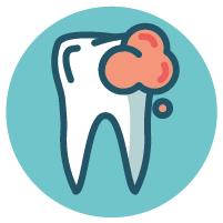 Saubere Zähne durch profesionelle Zahnreinigung und Prophylaxe in München